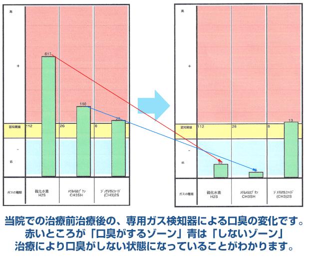 当院での治療前治療後の、専用ガス検知器による口臭の変化です。 赤いところが「口臭がするゾーン」青は「しないゾーン」 治療により口臭がしない状態になっていることがわかります。